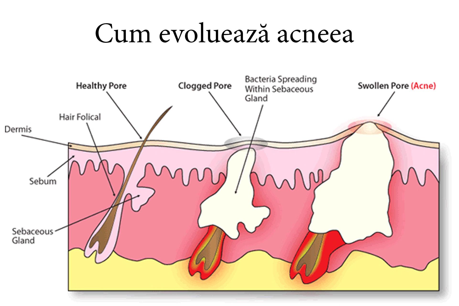 cum evoluează acneea